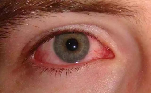 Pink Eye Problem
